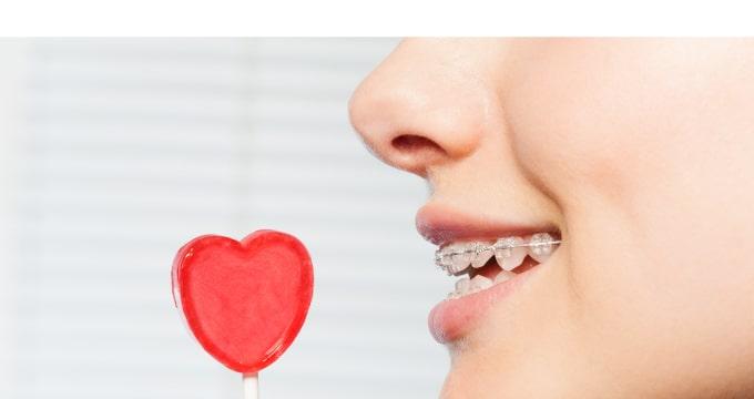 大人の歯並び矯正